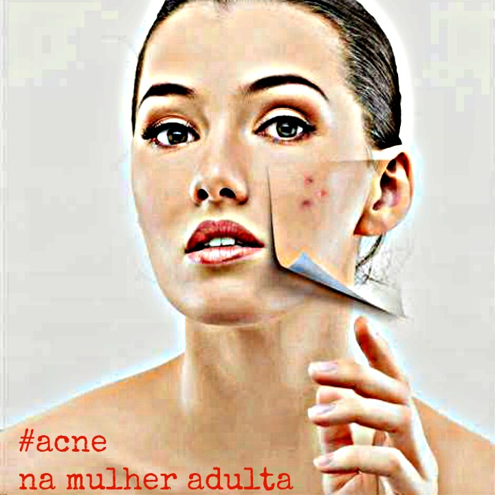 acne_adultos
